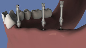 Bridge transvissé de 4 dents sur 3 implants
